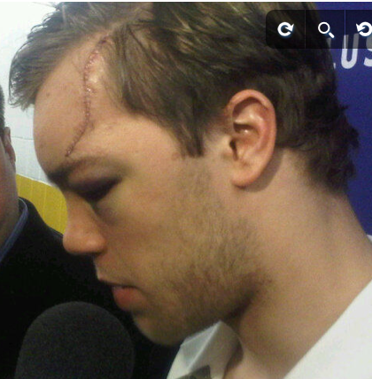 Hockey Gods          Taylor Hall With Stitches After Large Skate Cut on Forehead             CATEGORY    TAGS          Add Category Tag      Add Location Tag                SIMILAR        IMAGES      IMAGE          INFORMATION            0    COMMENTS  LEAVE A  COMMENT